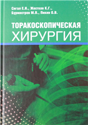 Торакоскопическая хирургия